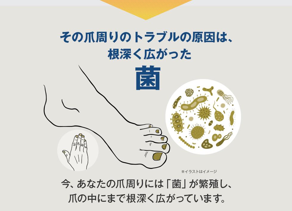 その爪トラブルの原因は、爪に根深く広がった菌今、あなたの爪には「菌」が繁殖し、爪のなかに根深く広がっています。※イラストはイメージ